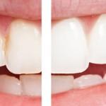 Dişlerinizi Beyazlatmayın